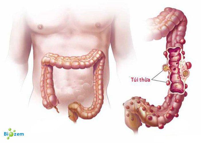 Bệnh Viêm Túi Thừa Đại Tràng